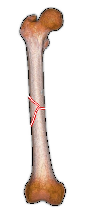 Winquist and Hansen classification of femoral shaft fractures - thigh bone - Winquist Grade III